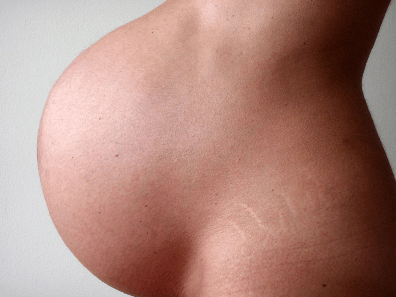 How to Get Rid of Stretch Marks Naturally and Fast